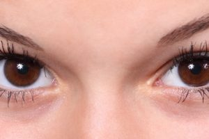 How are You Kept Still During LASIK? featured image