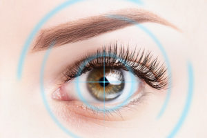 All About LASIK featured image