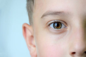 All About Strabismus featured image